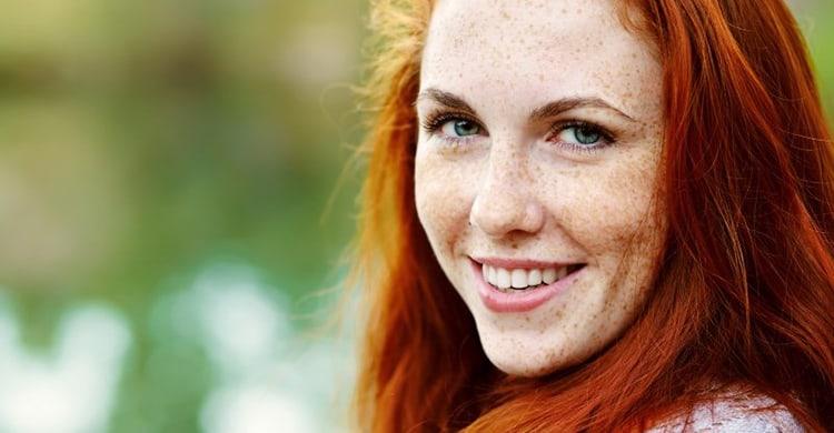 5 Best Freckle Removal Creams 2018